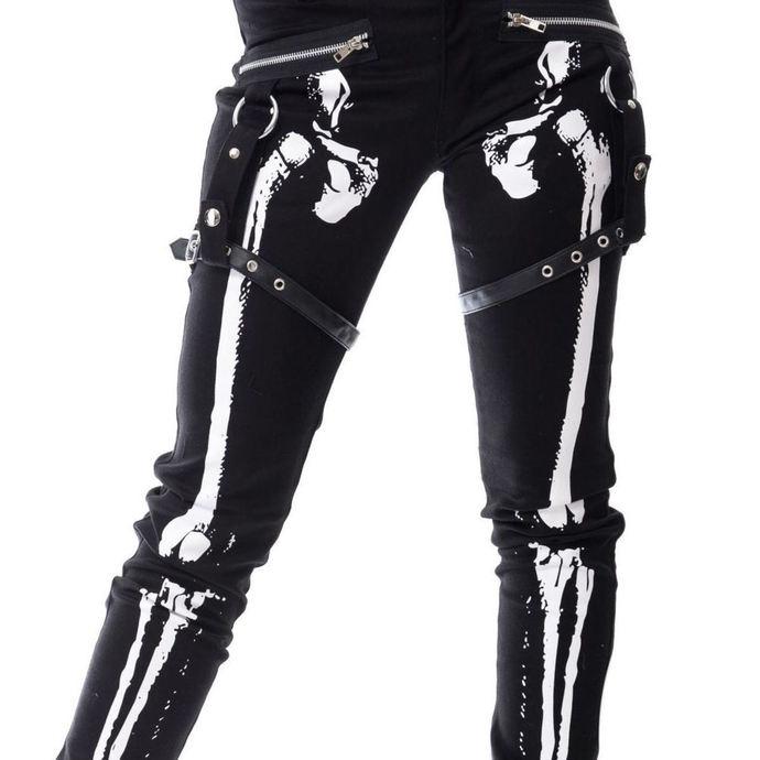 kalhoty dámské VIXXSIN - X RAY - BLACK